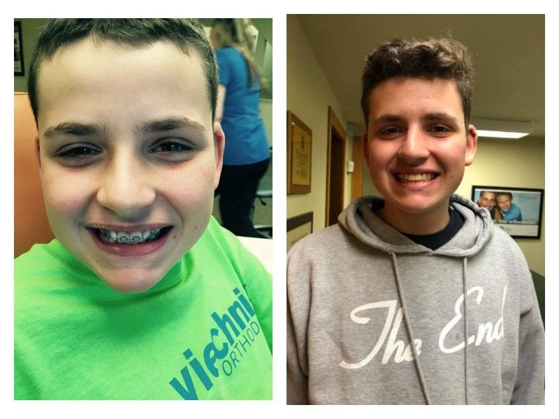 One mom reflects on the day her son's braces came off.